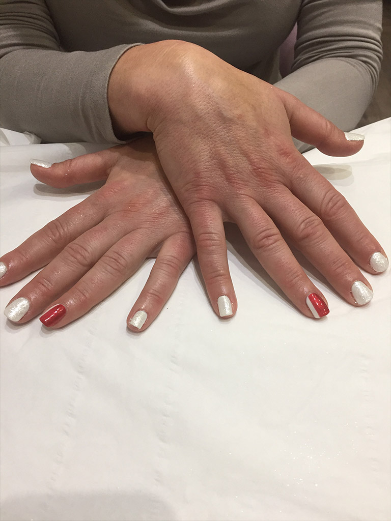 fingernail painting and treatment