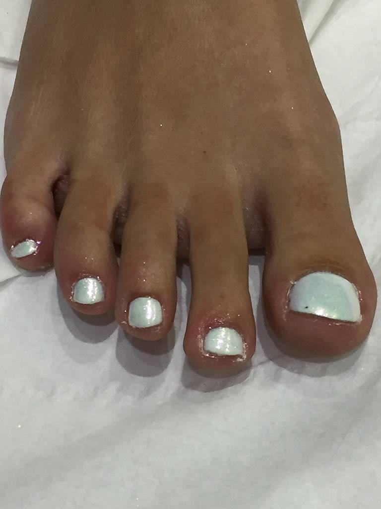 toe nail painting and treatment